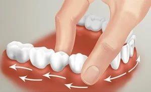 Как укрепить в домашних условиях зубы