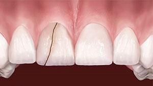 Трещина на зубе